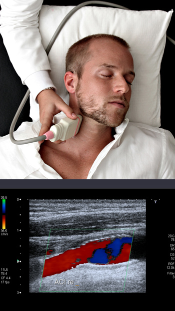 DUPLEX - Sonography - Ultrasound, Neurologist, Dubai, UAE