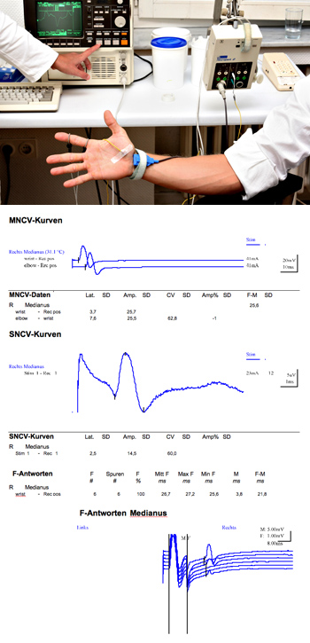 NCV (Nerve conduction velocity), GNC, German Neuroscience Center (Neurology, Psychiatry, Psychology, Counseling in Dubai, UAE)