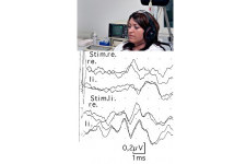 AEP (acoustically evoked potentials)