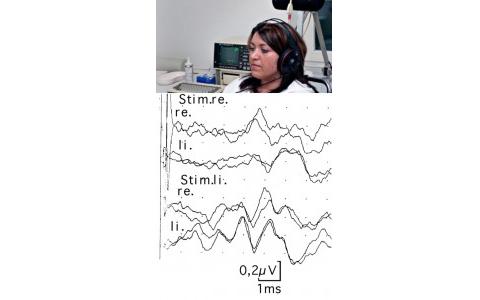 قياس الاستثارة السمعية