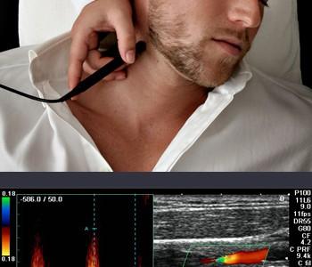 تصوير الأوعية الدموية (خارج القشرة الدماغية)