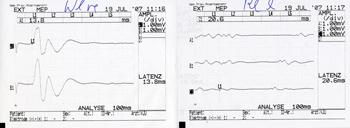 قياس الاستثارة العصبية الحركية
