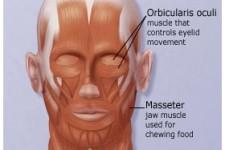 الوهن العضلي