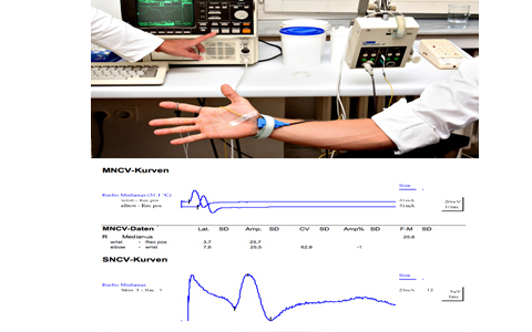 NCV (Nerve conduction velocity)