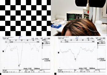 قياس الاستثارة البصرية