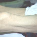 neuropathy diabetes dubai 6