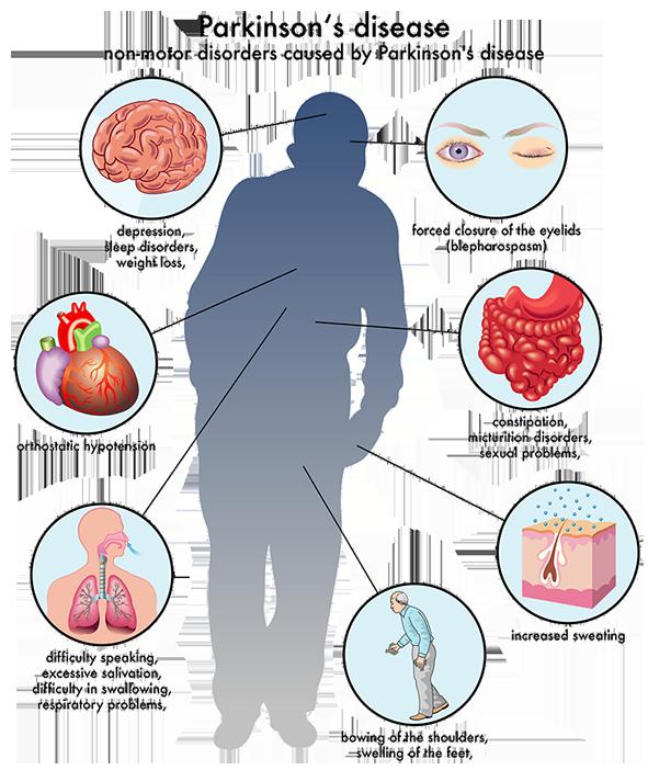 Parkinson dubai