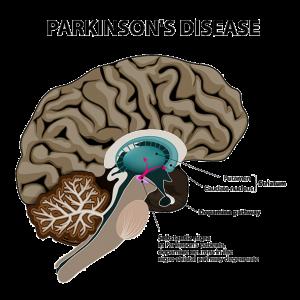 Parkinson uae