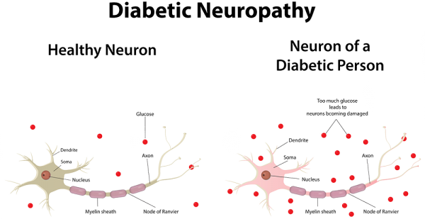 diabetic neuropathy dubai