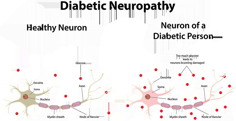 diabetic neuropathy dubai