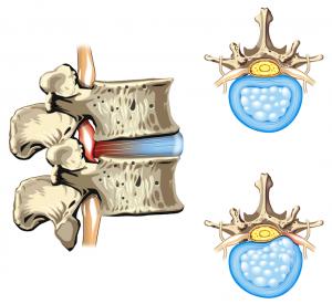 disk herniation