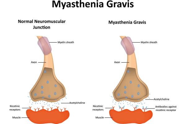 myasthenia-gravis-uae-dubai