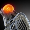 Migraine_in_Dubai_Ask_Your_Doctor