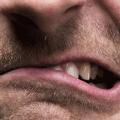 teeth grinding dubai