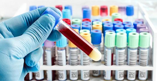 Parkinson's Disease Dubai – what's new this week?