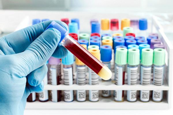 parkinson blood test