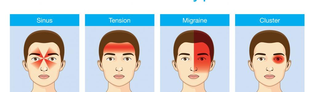 Headaches 4 type on different area of patient head.Illustration about heath care and medical