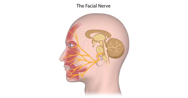 facial nerve palsy dubai