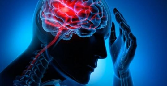 Causes, Signs and Symptoms of Strokes