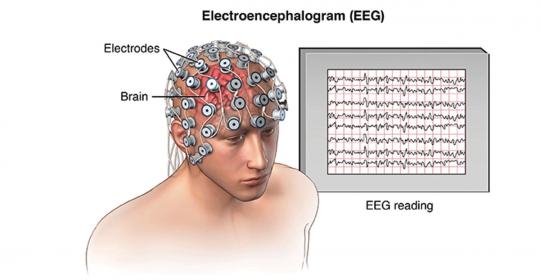 EEG – Electroencephalography